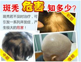 哪些因素导致斑秃?